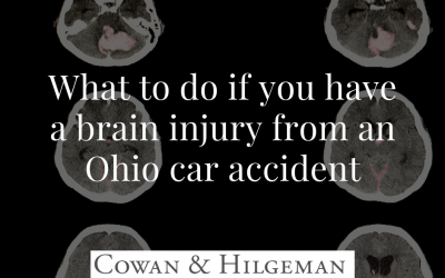 What to do if you have a brain injury from an Ohio car accident